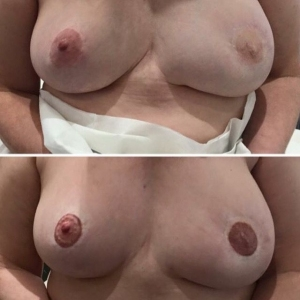 areola-tattooing-07