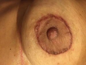 areola-tattooing-08