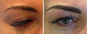 before-after-combination-brow-1