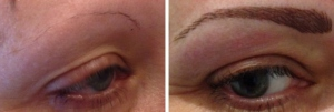 before-after-combination-brow-10