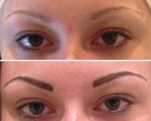 before-after-combination-brow-14