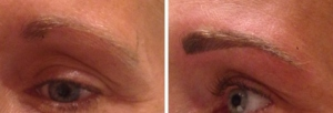 before-after-combination-brow-19