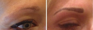 before-after-combination-brow-21