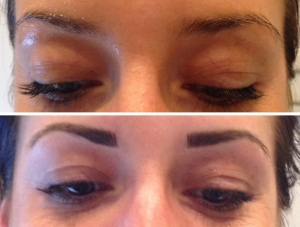 before-after-combination-brow-4