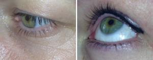 before-after-eye-liner