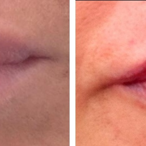 before-after-lip-blush