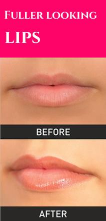 Lips - before and after
